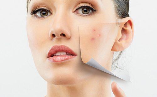 Девушку снимает с лица проблемный участок кожи, будто бумажку