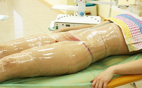 Обертывание тела пленкой