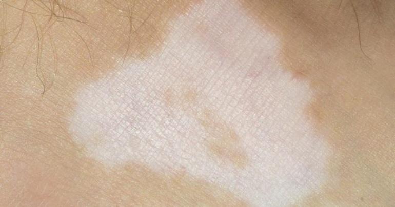 белые пятна на коже после загара что делать