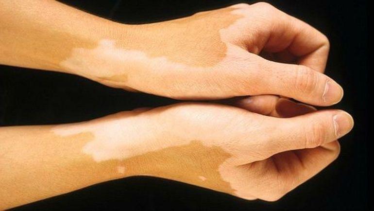 Белые пятна на коже после солнца