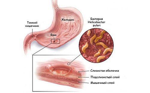 Рисунок демонстрирует механизм образования язвы желудка
