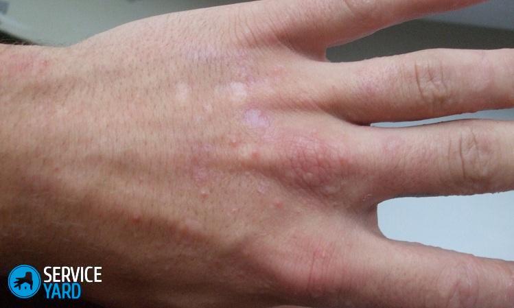 Волдыри на среднем пальце