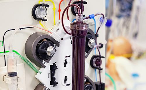 Аппарат для плазмофореза