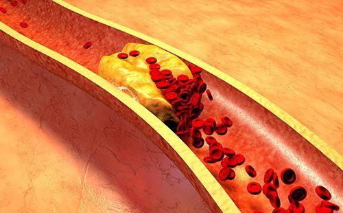 Бляшка холестерина в артерии