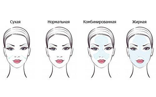 Схематическое изображение четырёх типов кожи