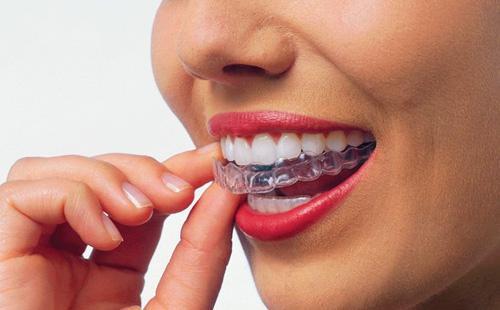 Каппы для отбеливания зубов