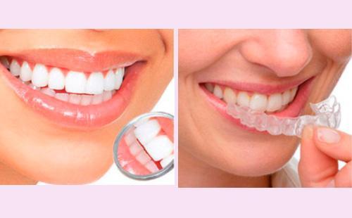 Отбеливание зубов с помощью кап