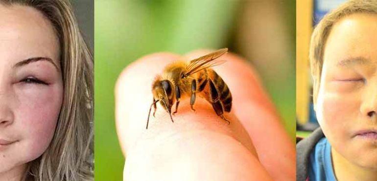 Как быть при укусе осы
